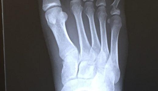 『足の小指を壁の出っ張りに強打〜右足第5基節骨骨折〜』