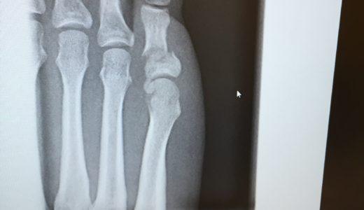 『足の小指を壁の出っ張りに強打〜右足第5基節骨骨折vol.3〜』