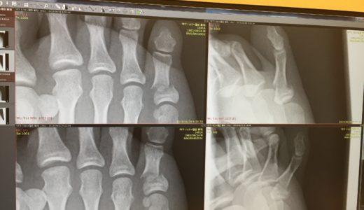 『足の小指を壁の出っ張りに強打〜右足第5基節骨骨折vol.2〜』