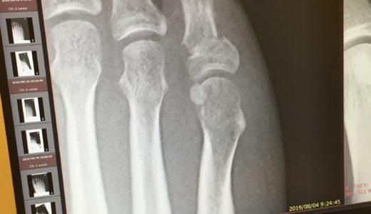 『足の小指を壁の出っ張りに強打〜右足第5基節骨骨折vol.6〜』